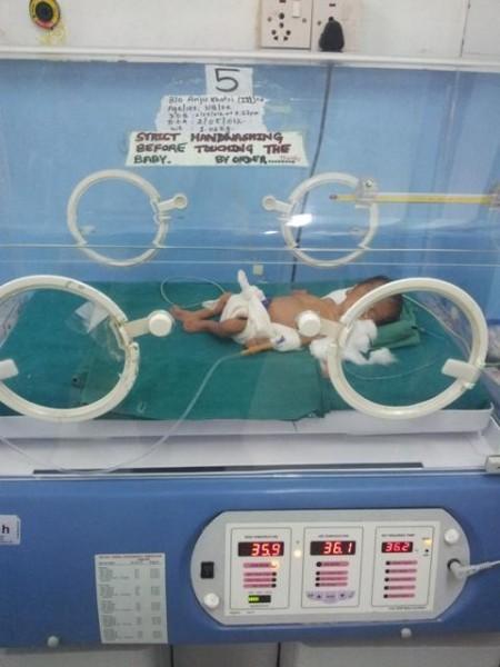 3. Baby, ein Mädchen, unser Sorgenkind (7 Tage alt)